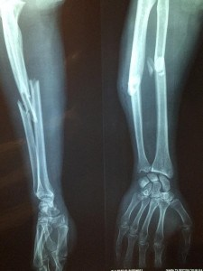 Read more about the article Fractures: Types and Overview