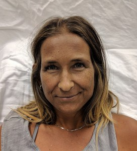 A women with Addison's disease with evidence of hyperpigmentation of the skin