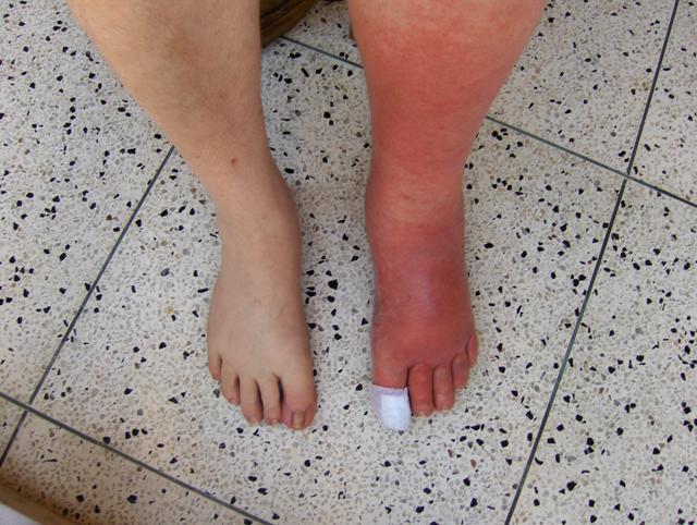 Left Leg Cellulitis