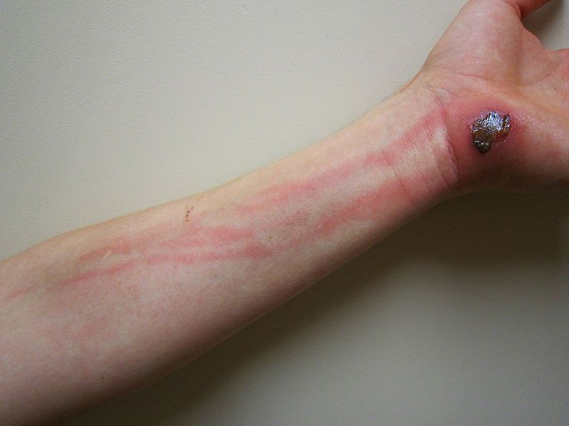 An example of 'tracking' cellulitis secondary to an open wound
