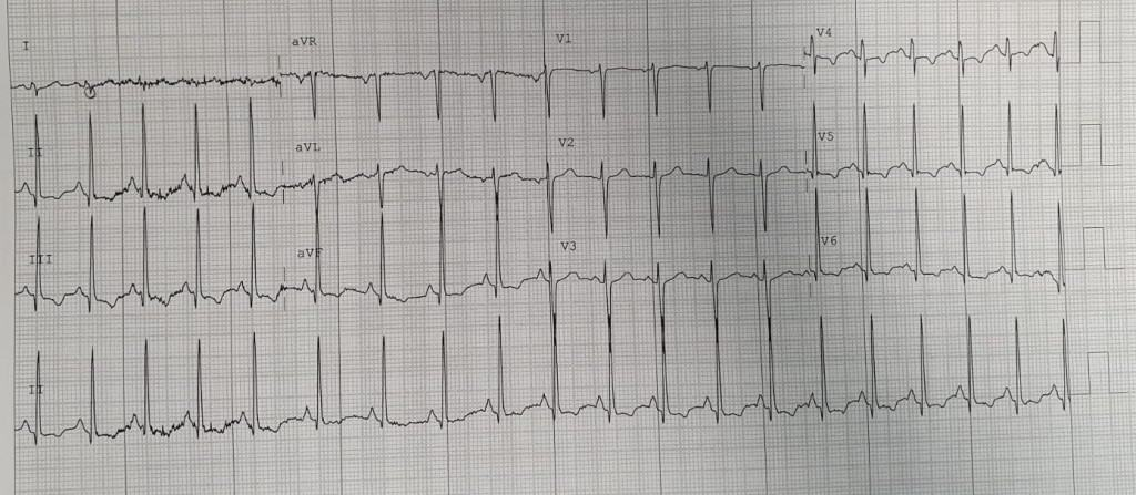 ECG showing classical S1Q3T3 pattern in PE