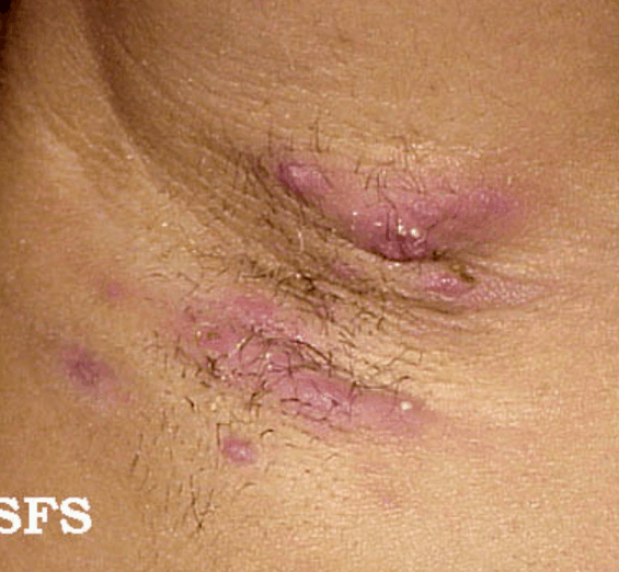 Hidradenitis suppurativa in the axilla