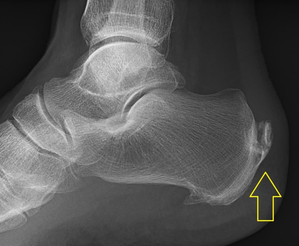Calcification of achilles tendon at insertion into calcaneum