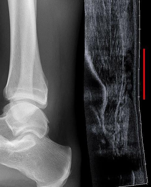Achilles tendon rupture on USS