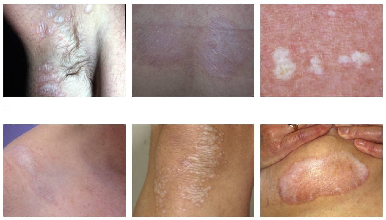 lichen sclerosus symtom
