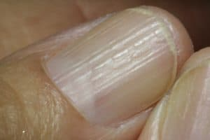 Lichen planus in fingernails