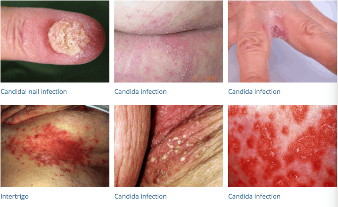 Sites of candida infection