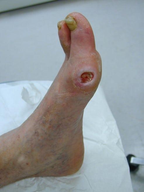 Arterial foot ulcer