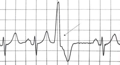 PVC on ECG