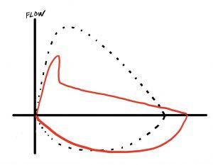 FLow volume loop in obstructive lung disease