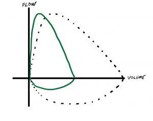 Flow volume loop in restrictive lung disease