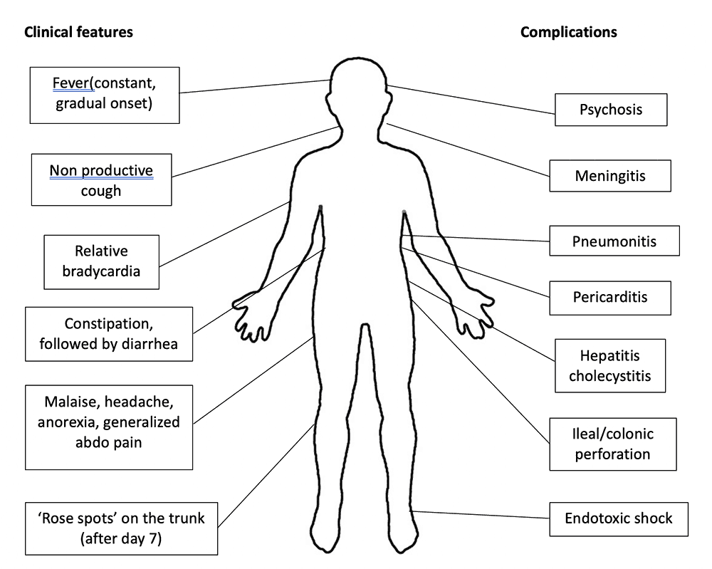 Typhoid clinical features and complications