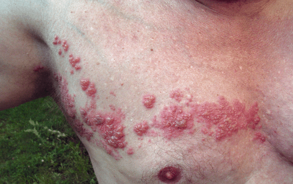 A case of herpes on the chest